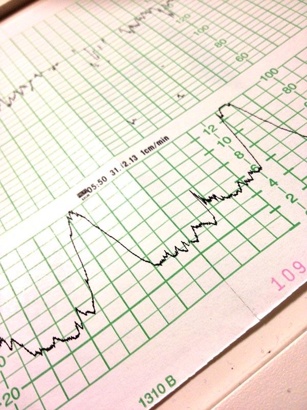 contrazioni-gravidanza-tempi-riconoscerle-ospedale-ibricino-libri-fiabe-favole-per-bambini-ragazzi-news-blog-recensioni-3